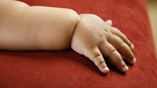 La Pesadilla de la Obesidad Infantil: Alarma Mundial #EF1hDiaria