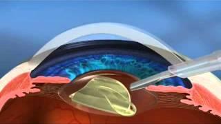 Cirurgia de catarata a laser: conheça a nova tecnologia LenSx