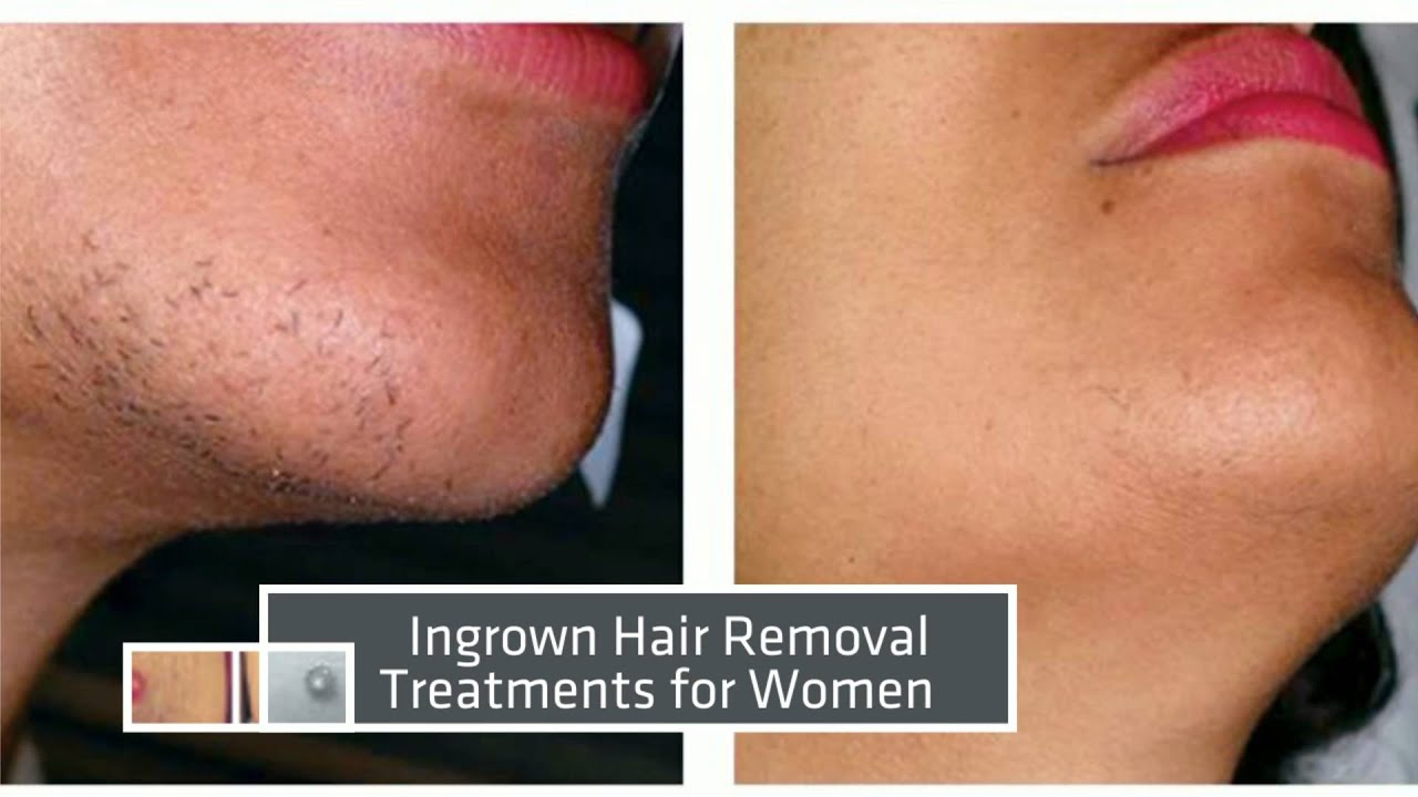 laser hair removal miami before amp after results youtube