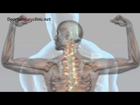 Shoulder Impingement Syndrome - Shoulder pain - Explained in a Minute