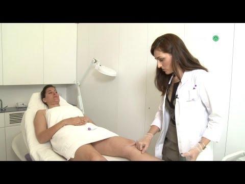 Operación biquini: Cómo eliminar las varices y depilarnos las piernas con láser
