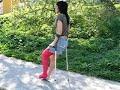 Crutching Long Leg Cast