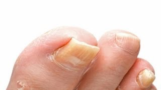 Toenail Fungus Treatment How To Treat Toenail Fungus