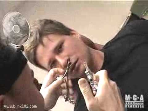 Blink 182 Rare Video 17 (Tom Delonge at the Doctors)