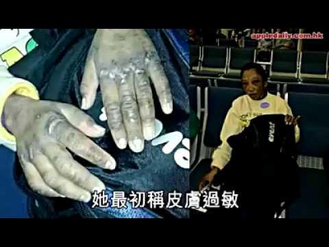 Penyiksaan tkw hongkong