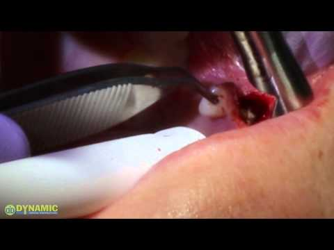 Excision of Benign Lesion Fibroma with DEKA laser