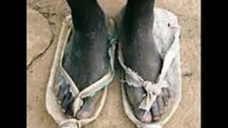 Um Dos Paises Mais Pobre Do Mundo