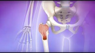 Myelofibrosis Mayo Clinic