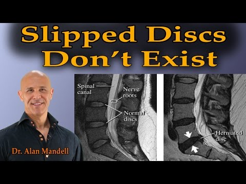 Why Slipped Discs Don't Exist - Dr Mandell