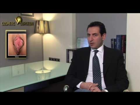 Βραζιλιάνικη Αιδοιοπλαστική με laser | Cosmetic V surgeon
