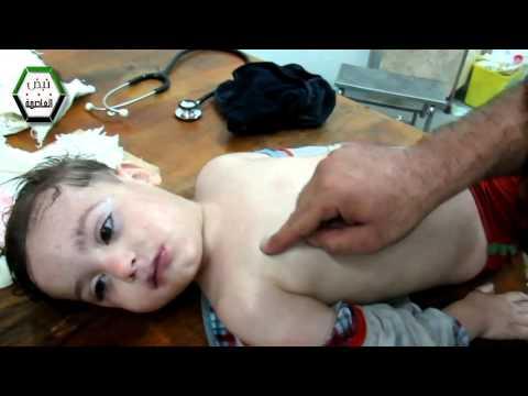 الغوطة الشرقية طفل يلفظ أنفاسه الاخيرة دون أن يستطيع أحد تقديم اي مساعدة له 21-8