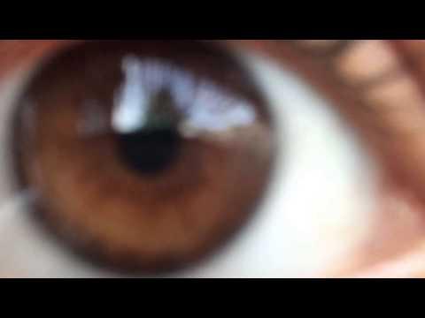 ✿ Iridology ✿ - Eye Review 32 ★★★★★