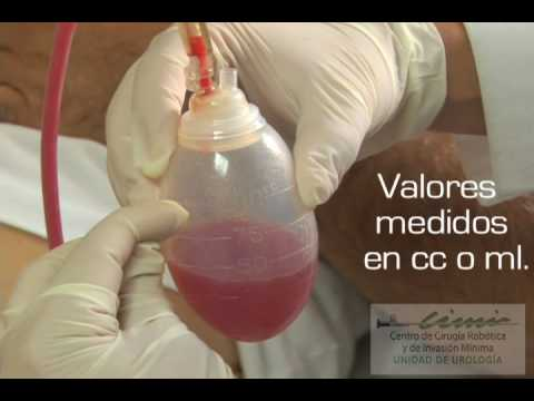 Cuidados Luego de la Cirugia - Ejercicios respiratorios que se deben realizar despues de la cirugía