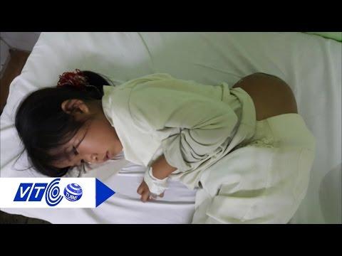 Phẫu thuật thành công cho bé gái 'người vượn' | VTC