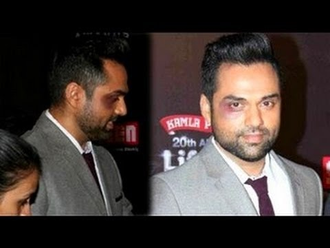Abhay Deol gets BEATEN UP BADLY!