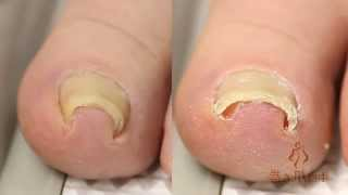 the best way to deal with funky toenail