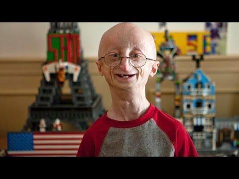 Hình ảnh trong video 17 Yr Old Kid Ages 8 Times Faster - Sam Berns