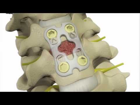 Anterior Cervical Discectomy and Fusion - DePuy Videos