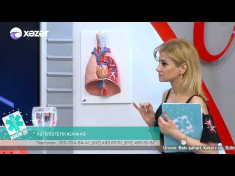 11 04 2017 Hekim ishi Xetai Estetik Klinikasi Damar cerrahi Mehemmed Efendiyev