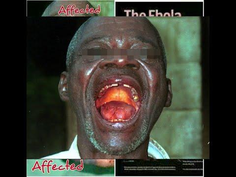 إيبولا : حكاية فيروس قاتل