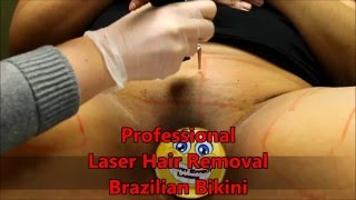 Something bikini waxes laser removal you