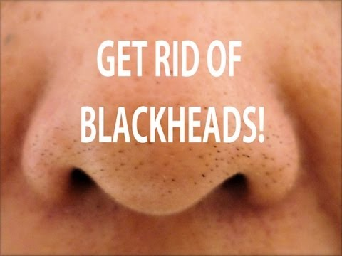 HOW TO GET RID OF BLACKHEADS! DIY BLACKHEAD TREATMENT!