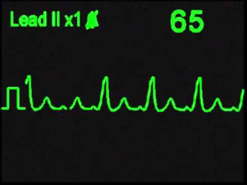 Wolff Parkinson White Syndrome - WPW - ECG Simulator - Arrhythmia Simulator