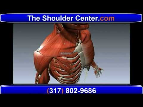 Shoulder Pain - All About  Tendonitis, Frozen Shoulder, Bursitis, and Rotator Cuff Tear