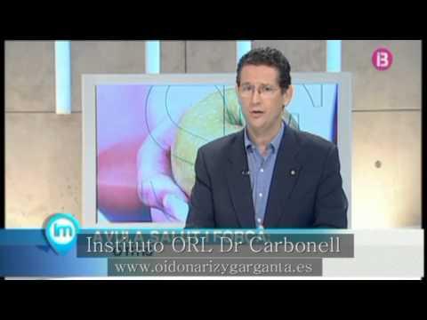 Tapones y bastones en la otitis externa