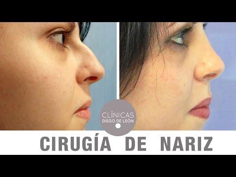 Cirugía de Nariz antes y después | Testimonio de Laura