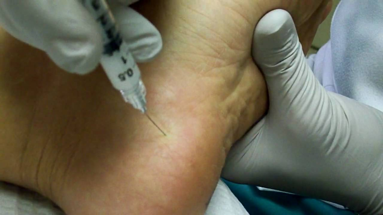 Heel Spur Or Plantar Fascia Injection Youtube