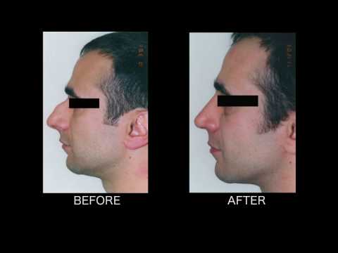 Dramatic Rhinoplasty - Thomas Loeb, MD  NYC Plastic Surgeon