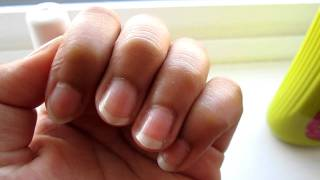 How To Grow Long Nails In Less Than 5 Days!!