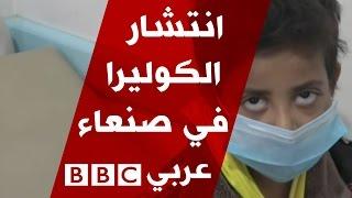 حالة طوارئ في صنعاء بعد وفاة العشرات بسبب الكوليرا |