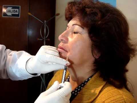Tratamiento estético de aumento de labios con ácido hialurónico por Dermatologo en Lima Perú