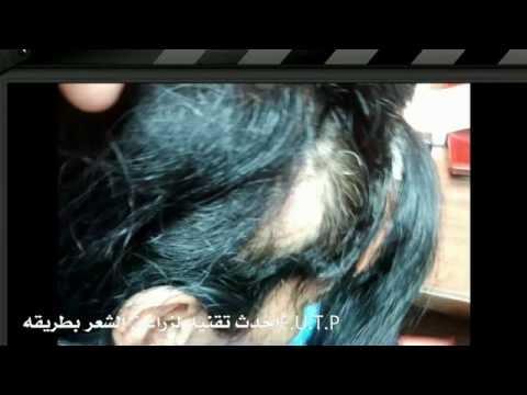 زراعة الشعر الطبيعي د.وليد الجبالي