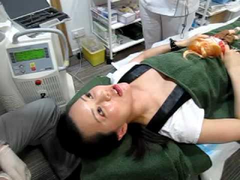 激光嫩頸療程 part 3  WEEKEND PEEL 3