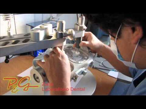 Laboratorio Dental PyG Zahn - Protesis dental zirconio