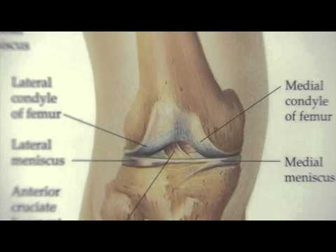 Kicking Knee Pain with Cartilage Replacement