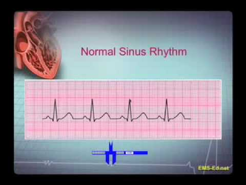 Introduction to EKG Rhythm Interpretation (Part 1)
