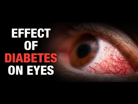 Effect of Diabetes on Eyes - Dr. Nitika Kohli - AIMIL Good Health