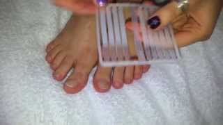 How To Treat TOENAILS FUNGUS