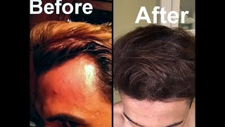 Natural Ways To Deal With Hair Loss In Men Youtube