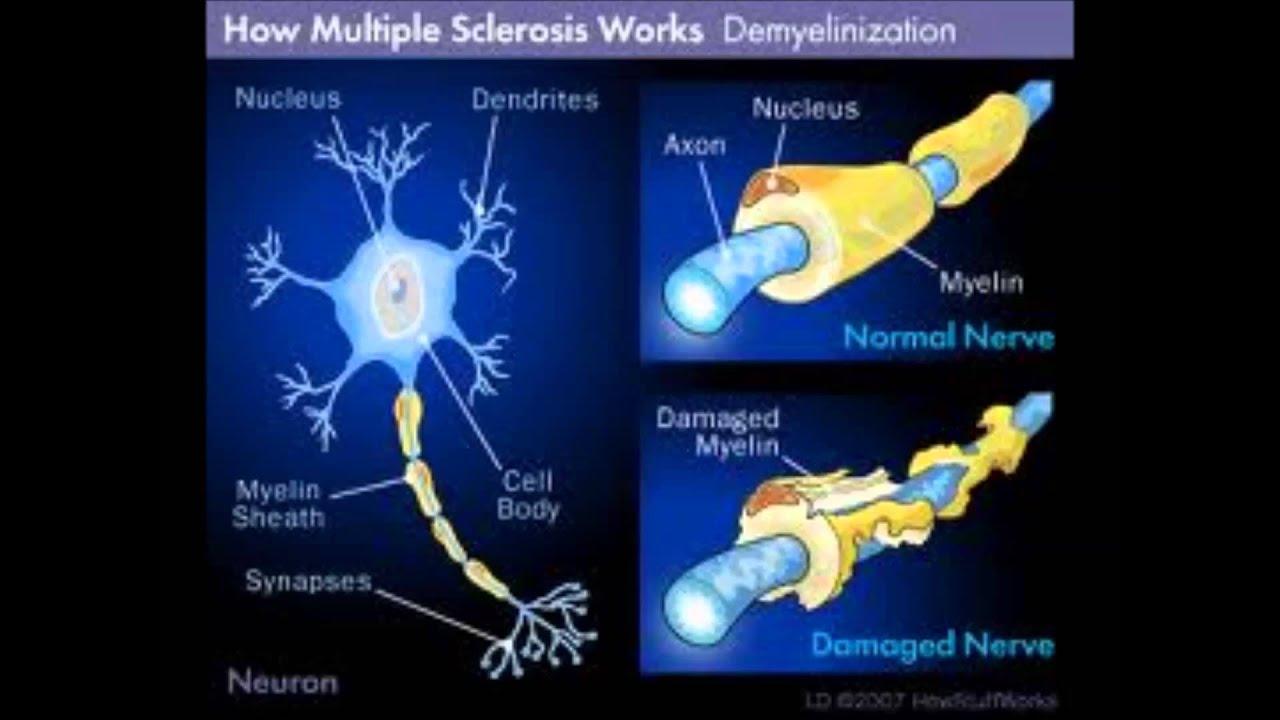 naltrexone for multiple sclerosis ratings