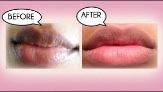 how to get rid of a cold sore home remedy treatment