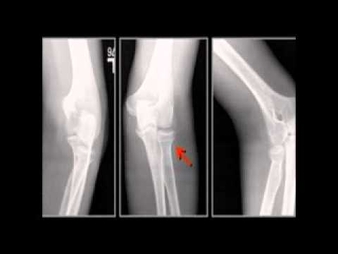 LearningRadiology 57 (Elbow Fractures-Dislocations)