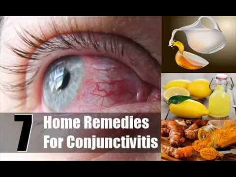 Seven Best Home Remedies For Conjunctivitis