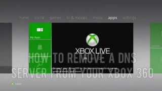 GTA 5 How To Remove A DNS Server Xbox And PS3