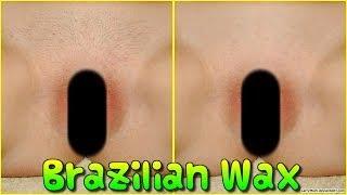бразильский шугаринг зоны бикини