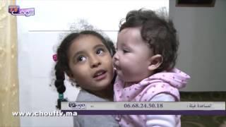 لأصحاب القلوب الرحيمة..طفلة صغيرة تعاني من مرض نادر و تحتاج لعملية لاستعادة ابتسامتها | حالة خاصة